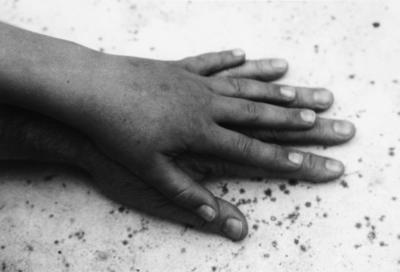 Thea's Hand